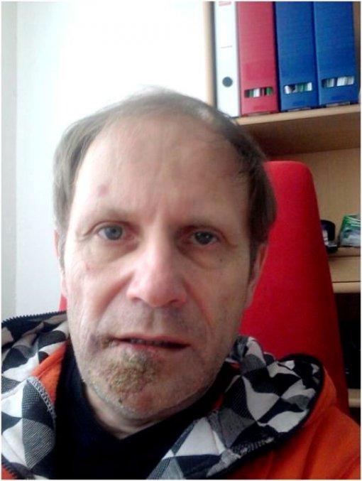 Group Director Jiří Hřebíček - 3. deň po úraze