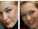 pred a po aplikácii produkcie Dr. Nona