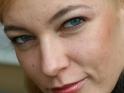 stav pokožky pred liečbou akné